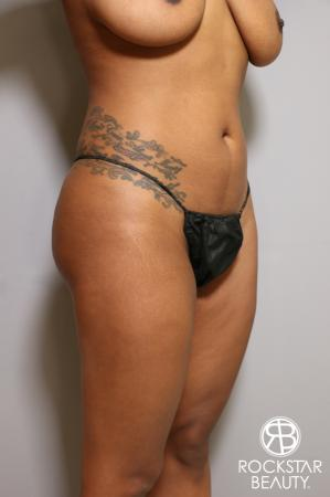 Liposuction: Patient 18 - Before Image 3