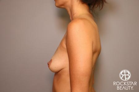 Breast Augmentation: Patient 3 - Before Image 4
