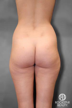 Liposuction: Patient 9 - Before Image 1