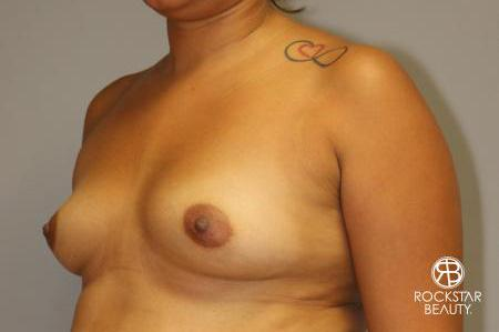 Breast Augmentation: Patient 9 - Before Image 3