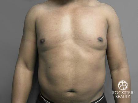 Liposuction: Patient 10 - After Image 1