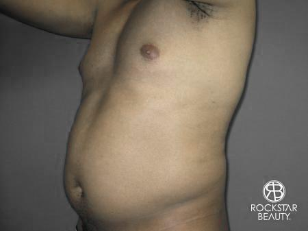 Liposuction: Patient 10 - Before Image 4