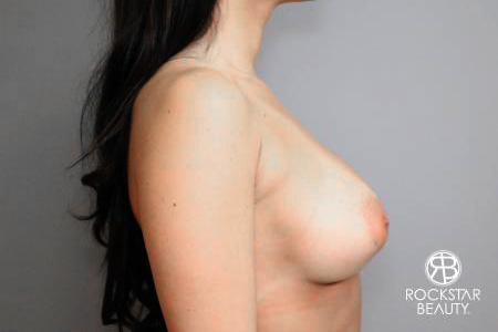 Breast Implant Exchange: Patient 4 - Before Image 3