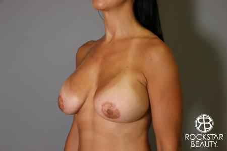 Breast Augmentation: Patient 12 - After Image 3