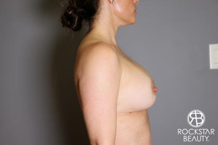 Breast Implant Exchange: Patient 6 - After Image 3