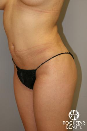 Liposuction: Patient 14 - Before Image 1