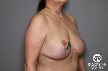 Mastopexy: Patient 2 - After Image 2