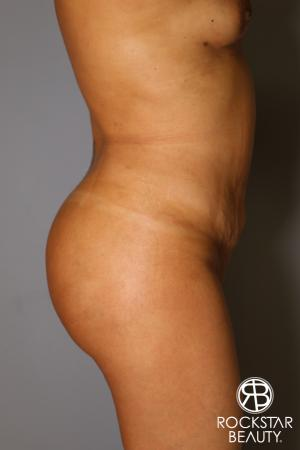 Brazilian Butt Lift: Patient 12 - After Image 3