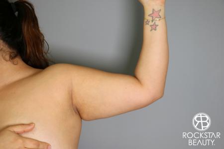 Liposuction: Patient 12 - Before Image 2