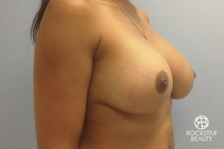 Combo Procedures - Breast: Patient 1 - After Image 3