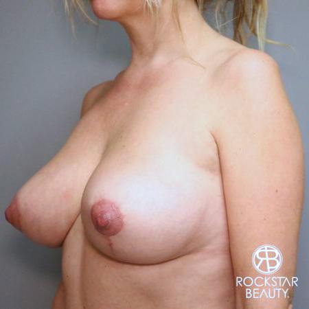 Mastopexy: Patient 1 - After 4