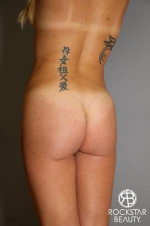 Brazilian Butt Lift: Patient 6 - After Image 3