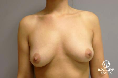 Breast Augmentation - Fat: Patient 1 - After Image