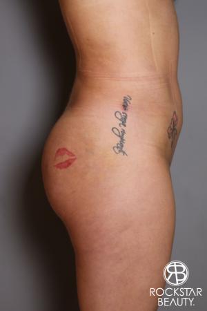 Brazilian Butt Lift: Patient 17 - After Image 4