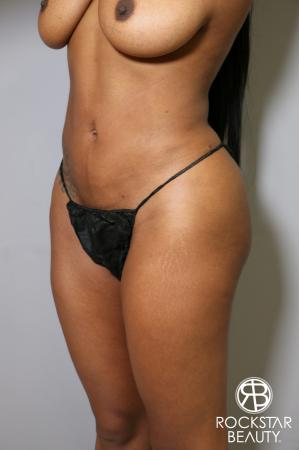 Liposuction: Patient 18 - After Image 2