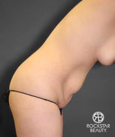 Tummy Tuck: Patient 10 - Before and After Image 4
