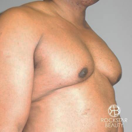 Gynecomastia: Patient 1 - Before Image 2