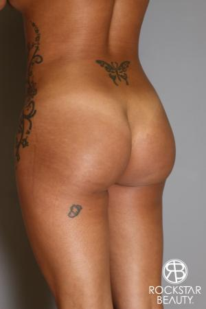 Brazilian Butt Lift: Patient 9 - After Image 4