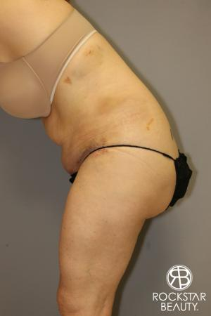 Tummy Tuck: Patient 12 - After Image 4