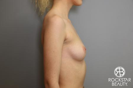 Breast Augmentation: Patient 1 - Before Image 3