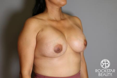 Breast Augmentation: Patient 13 - After Image 2