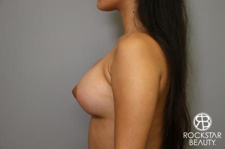 Breast Augmentation: Patient 4 - After Image 5