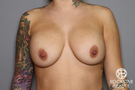 Breast Implant Exchange: Patient 10 - Before Image
