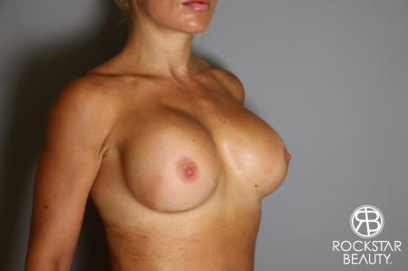 Breast Implant Exchange: Patient 9 - After Image 2