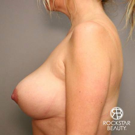 Mastopexy: Patient 1 - After 5