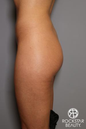 Brazilian Butt Lift: Patient 5 - Before Image 2
