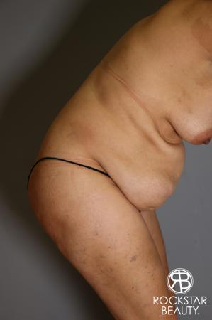 Tummy Tuck: Patient 13 - Before and After Image 5