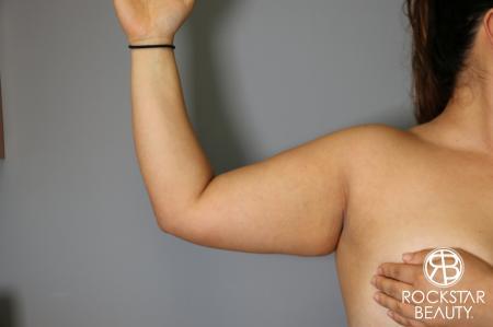 Liposuction: Patient 12 - Before Image 1