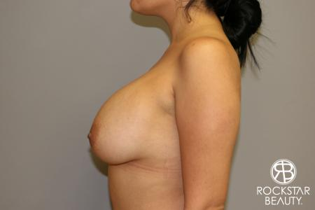 Breast Lift And Augmentation: Patient 1 - Before Image