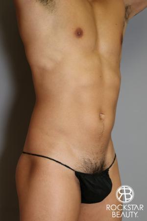 Liposuction: Patient 17 - Before Image 3