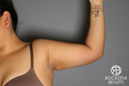 Liposuction: Patient 12 - After Image 2