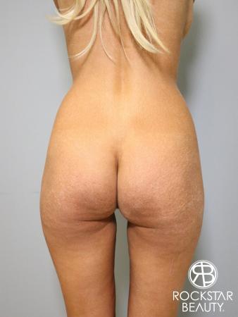 Butt Augmentation: Patient 1 - Before Image