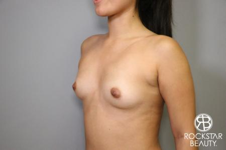 Breast Augmentation: Patient 4 - Before Image 4