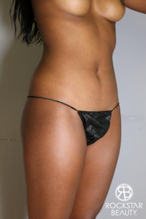 Liposuction: Patient 19 - Before Image 1