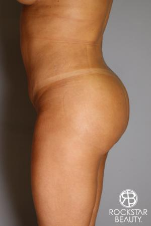 Brazilian Butt Lift: Patient 12 - After Image 4