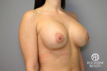 Breast Implant Exchange: Patient 4 - After Image 2
