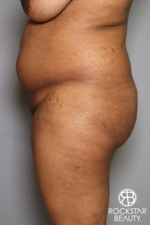 Brazilian Butt Lift: Patient 13 - Before Image 3