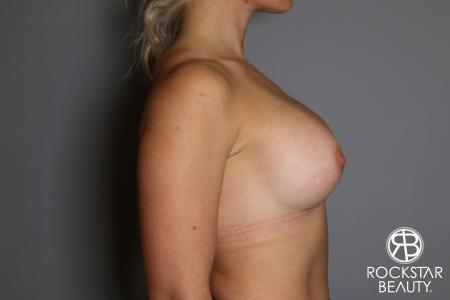 Breast Implant Exchange: Patient 9 - Before Image 3