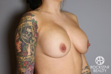 Breast Implant Exchange: Patient 10 - Before Image 2