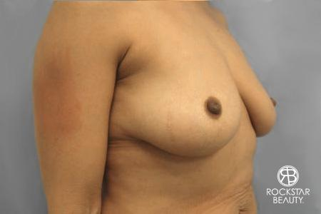 Combo Procedures - Breast: Patient 1 - Before Image 3