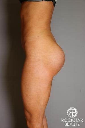 Butt Augmentation: Patient 3 - After Image 3