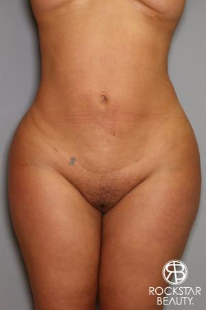 Brazilian Butt Lift: Patient 14 - Before Image 2