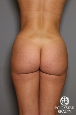 Brazilian Butt Lift: Patient 16 - After Image 1