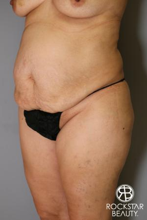 Tummy Tuck: Patient 13 - Before Image 3