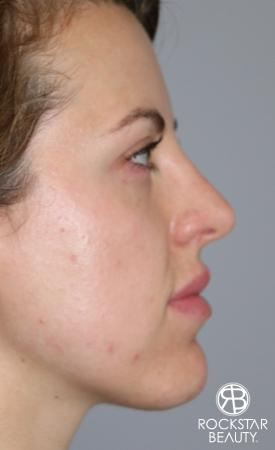 Rhinoplasty: Patient 1 - After Image 2
