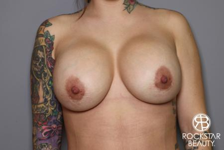Breast Implant Exchange: Patient 10 - After Image